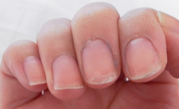 Why Do Nails Peel? — Causes and Treatment | Nail Design Ideaz