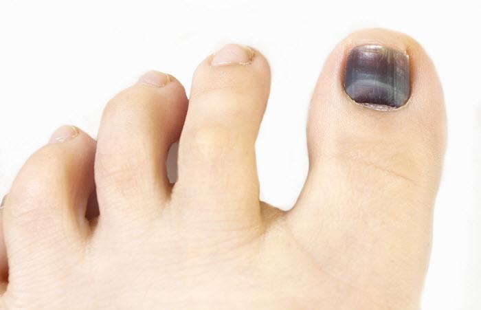 Ноготь большого пальца ног темного цвета