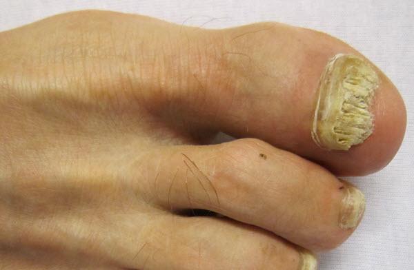 toenail fungal infection