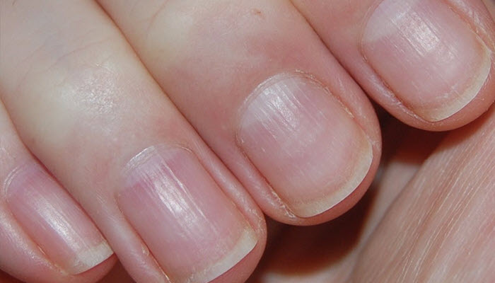 How to Get Rid of Ridges on Nails | Nail Design Ideaz