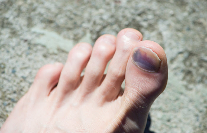What Is The Best Treatment for Toenail Fungus   Nail Design Ideaz